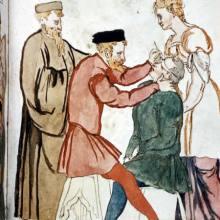 Medieval eye surgery